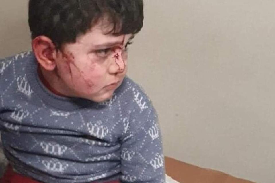 Residential area damaged amid clashes between Armenia and Azerbaijan