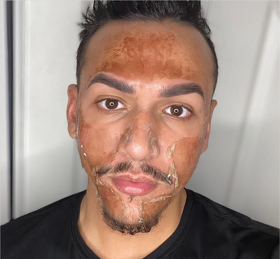 Salvedor Salcedo pictured here on day three of his VI Precision Plus Chemical Peel process where the old skin is clearly coming off and soon will unveil his fresh new skin.