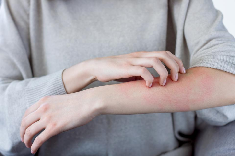 Scratching rash on arm