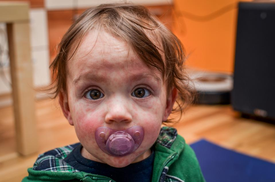 Child with measles rash