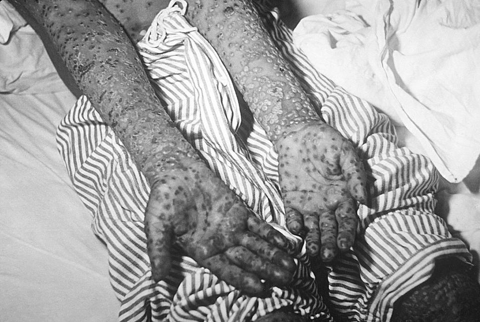 Patient With Smallpox, Kosovo