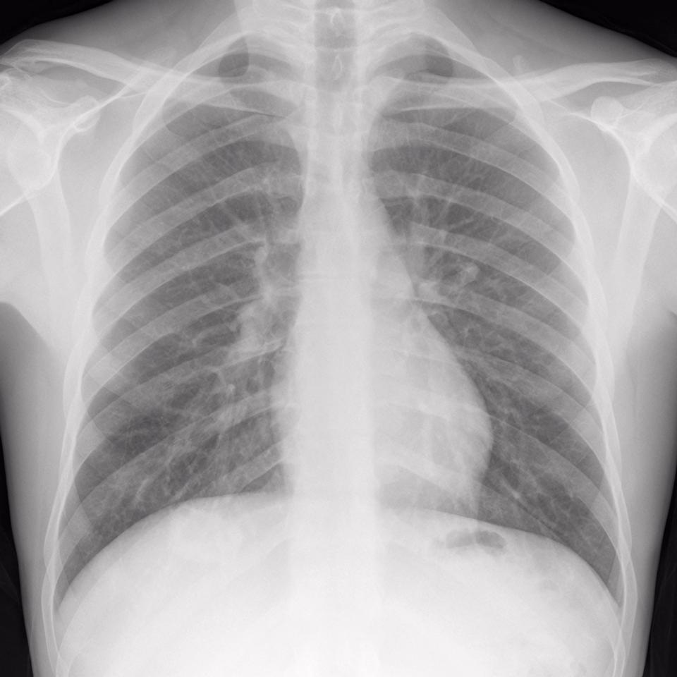 Normal chest x-ray in a healthy adult male