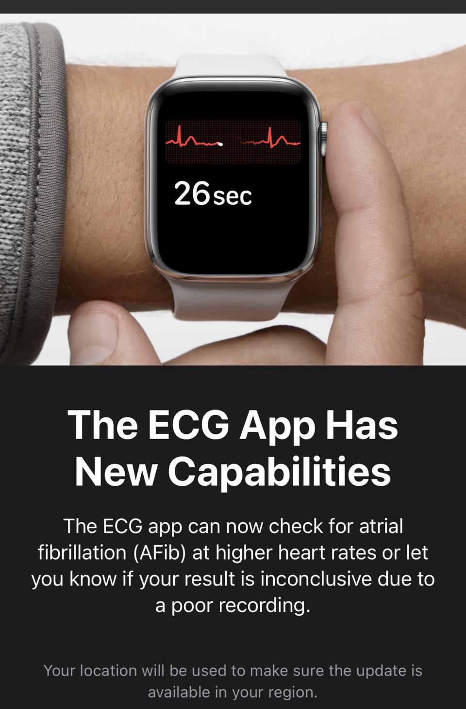 Look out for a notification of the ECG app upgrade.