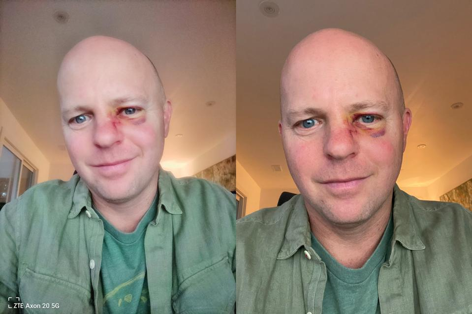 Selfie face-off between the ZTE Axon 20 5G and my daily driver: an iPhone 11 Pro (last year's model).