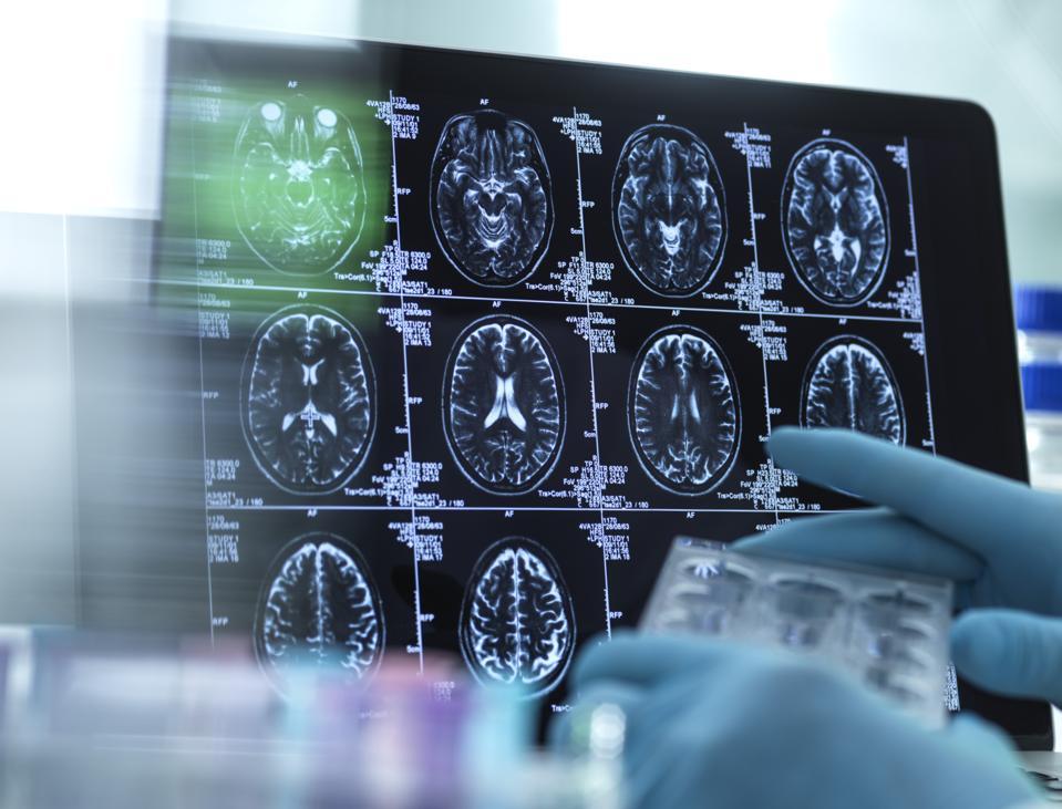 Neurology scans