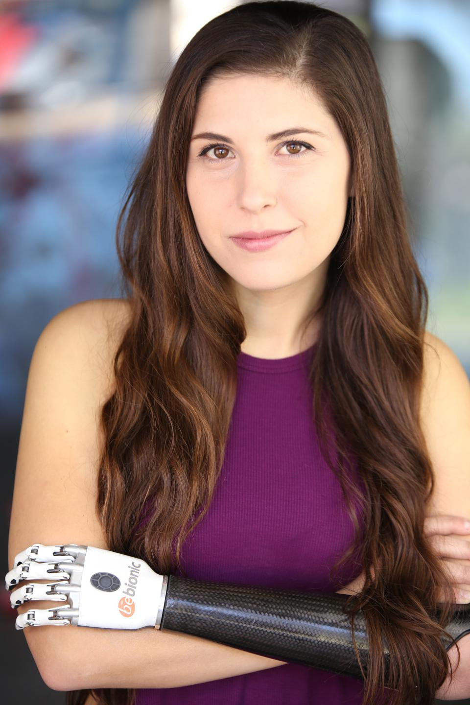 A woman with long brown hair and a dark purple shirt poses wearing her prosthetic arm.