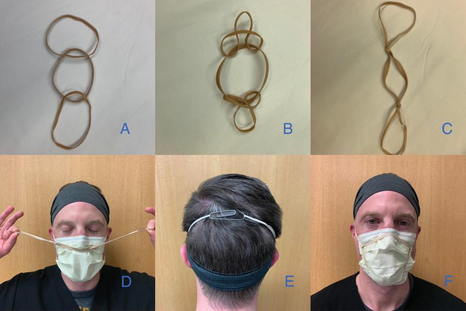 The 'double eights mask brace', a fitter made from three rubber bands and a paperclip.