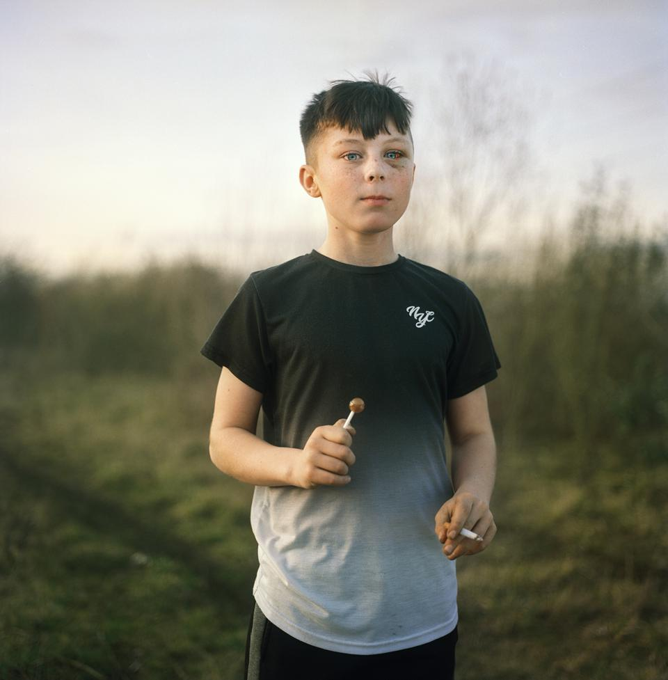 Sony World Photography Awards: a boy with a cigarette and a lollipop