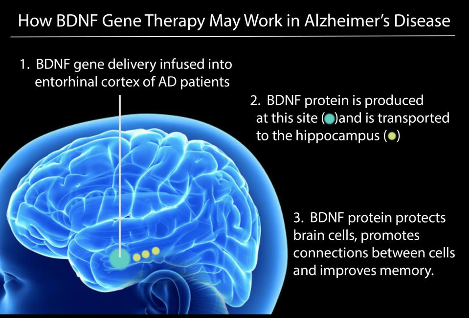 Diagram showing that which part of the brain BDNF gene therapy will be delivered to
