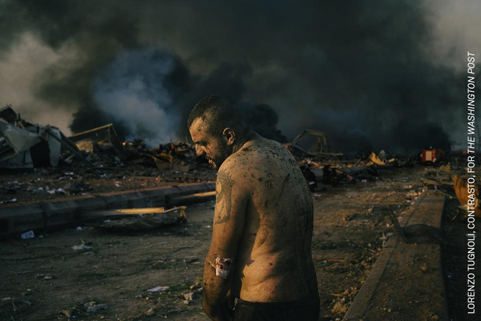 World Press Photo contest: Injured Man After Port Explosion in Beirut,