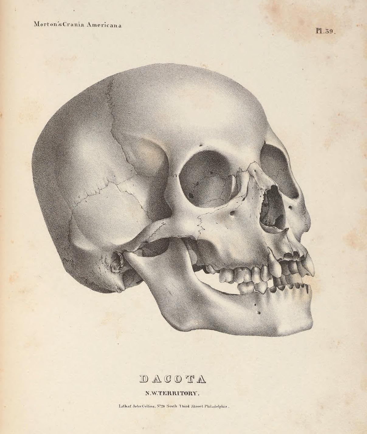 Collection Morton de l'UPenn collection de crânes