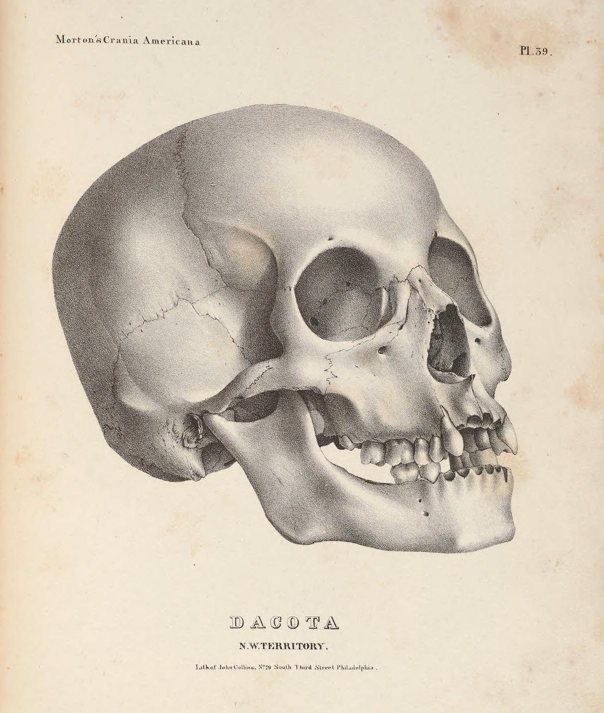 UPenn Morton Collection skull collection