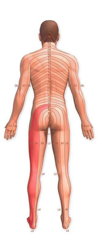 Illustration of dermatomes