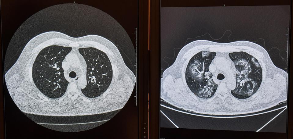 BRAZIL-HEALTH-VIRUS-DIAGNOSIS-ARTIFICIAL INTELLIGENCE