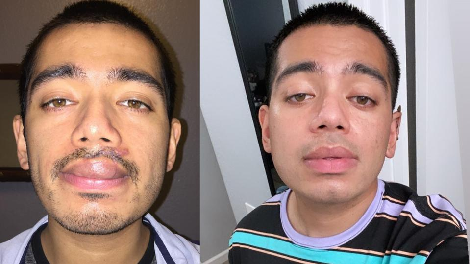 Two pictures of Edward Centeno before and after his lip healed
