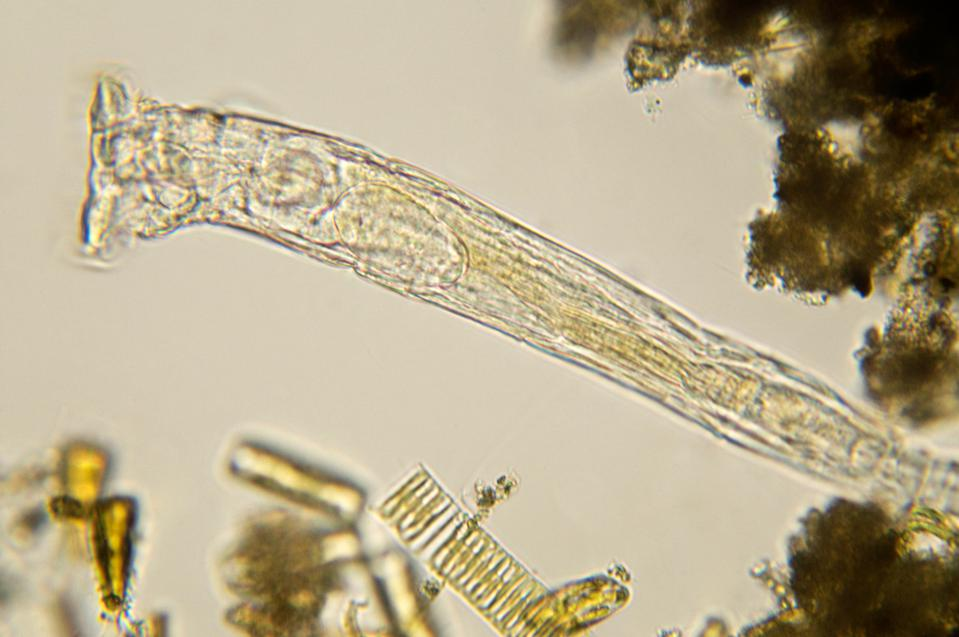 A close up microscopic image of rotifer