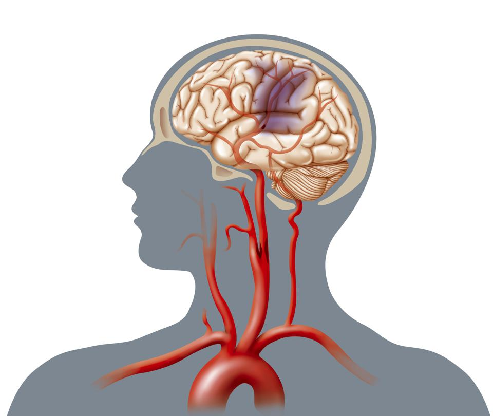 Stroke Risk Increased For Younger Adults With PTSD, Study Finds
