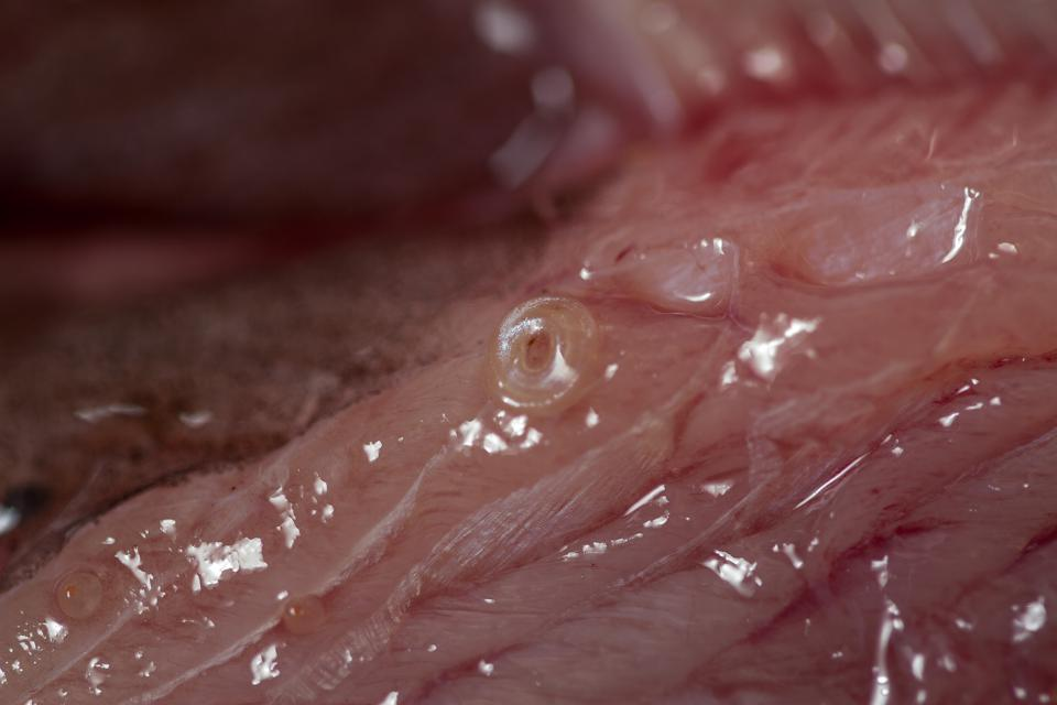 Ugh look at what could be in your sushi for Raw fish parasites