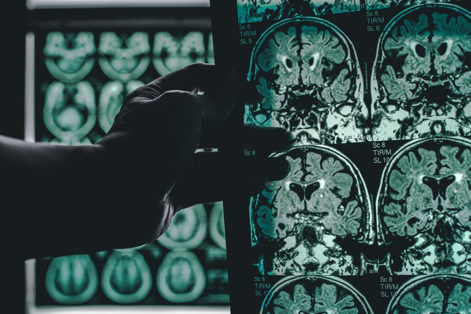 This New Alzheimer's Discovery Could Be The Key To Future Treatments