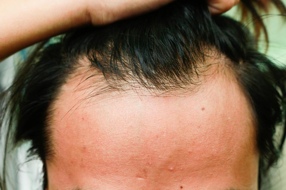Company Uses Patients' Own Cells To Put An End To Baldness, Aging Skin And Tendon Degeneration
