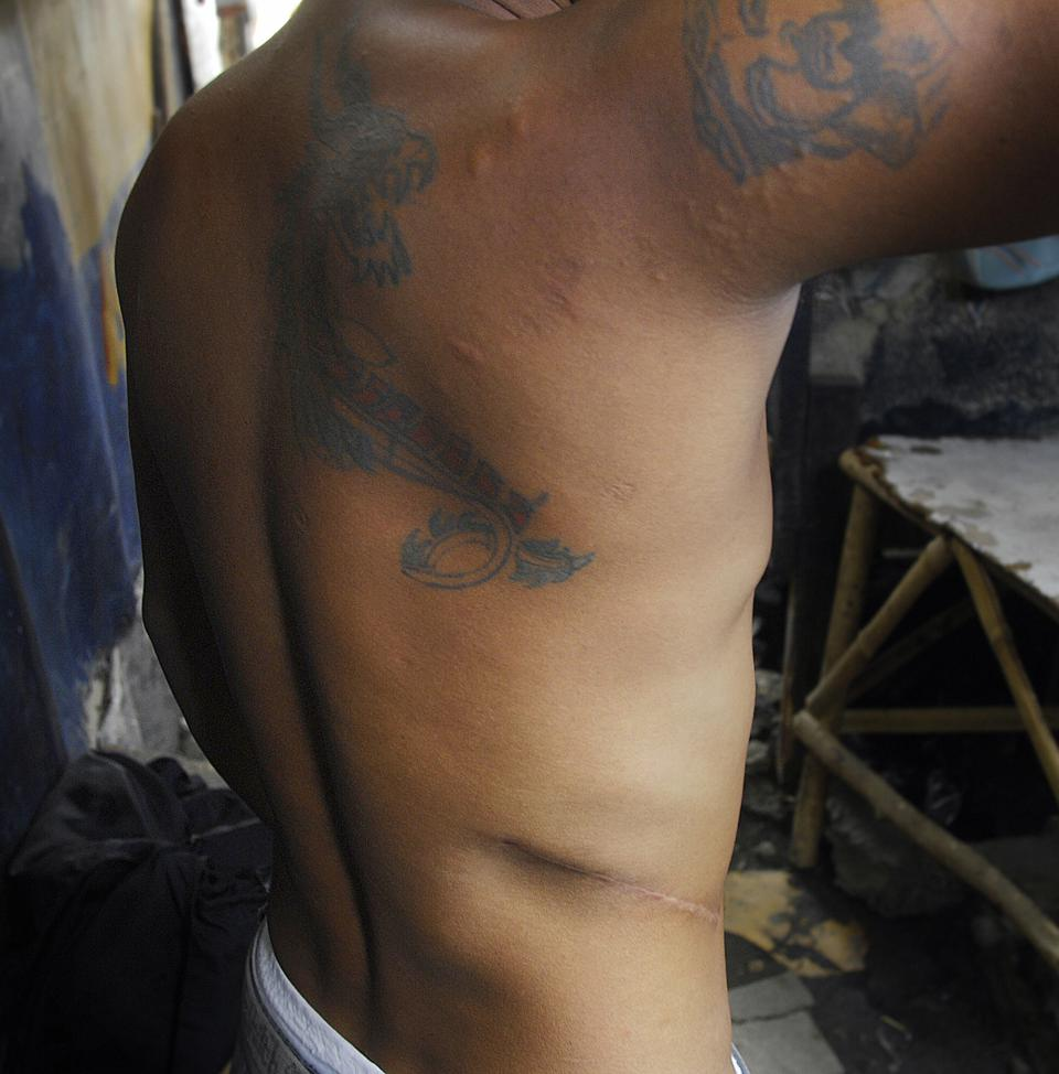 A tattoooed shirtless man shows a scar on his torso