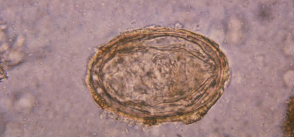 Schistosoma Japonicum Egg