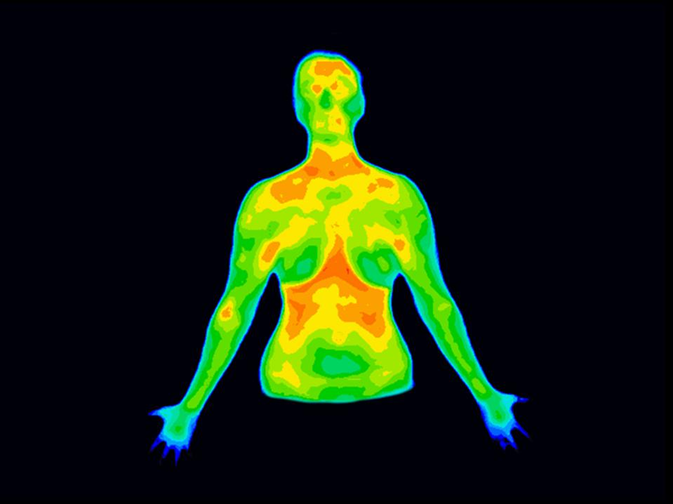 Thermography Front Upper body b