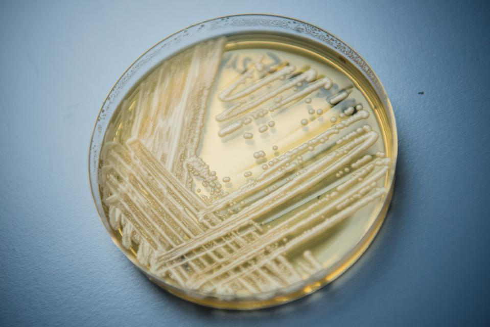 C. Auris, The Deadly Fungus CDC Says It's 'Still Trying To Figure Out'